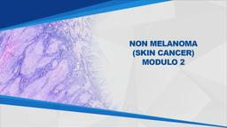 Non melanoma (Skin Cancer) Mod2