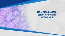 Non melanoma (Skin Cancer) Mod1